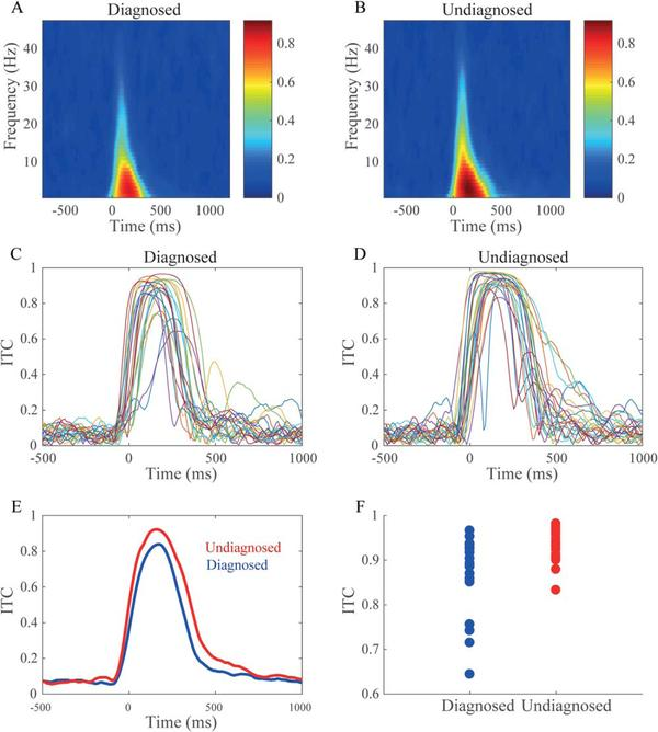 Atypical EEG in autism spectrum disorder: Comparing a