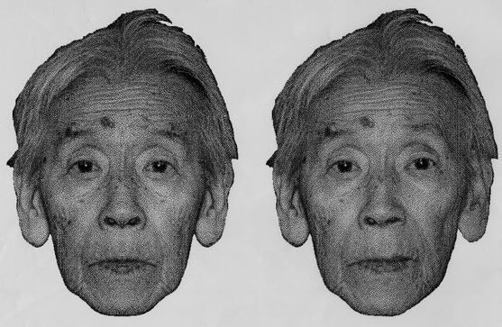 R j elder facial symmetry
